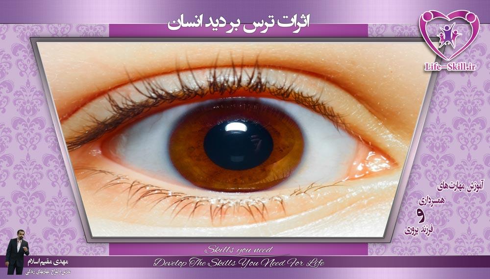 اثرات ترس بر بینایی